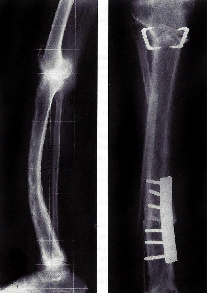 <strong>So in etwa schaute Patricks Schienbeinbruch aus.</strong><span class=>© Wikipedia</span>